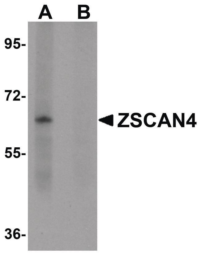 ZSCAN4 Rabbit anti-Human, Mouse, Rat, Polyclonal, Invitrogen 100 µg;