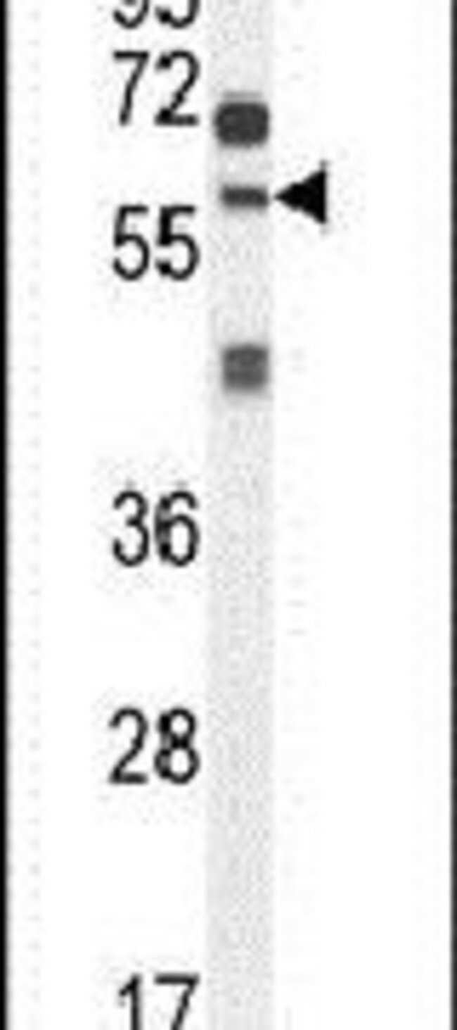 ZSWIM1 Rabbit anti-Human, Polyclonal, Invitrogen 400 µL; Unconjugated