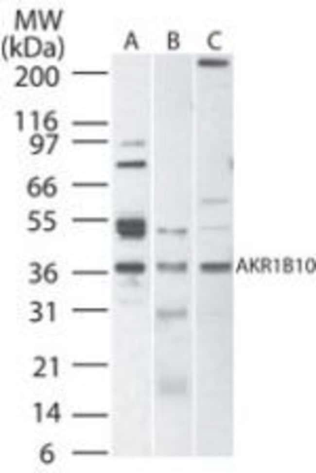 AKR1B10 Rabbit anti-Human, Mouse, Rat, Polyclonal, Invitrogen 100 μg;