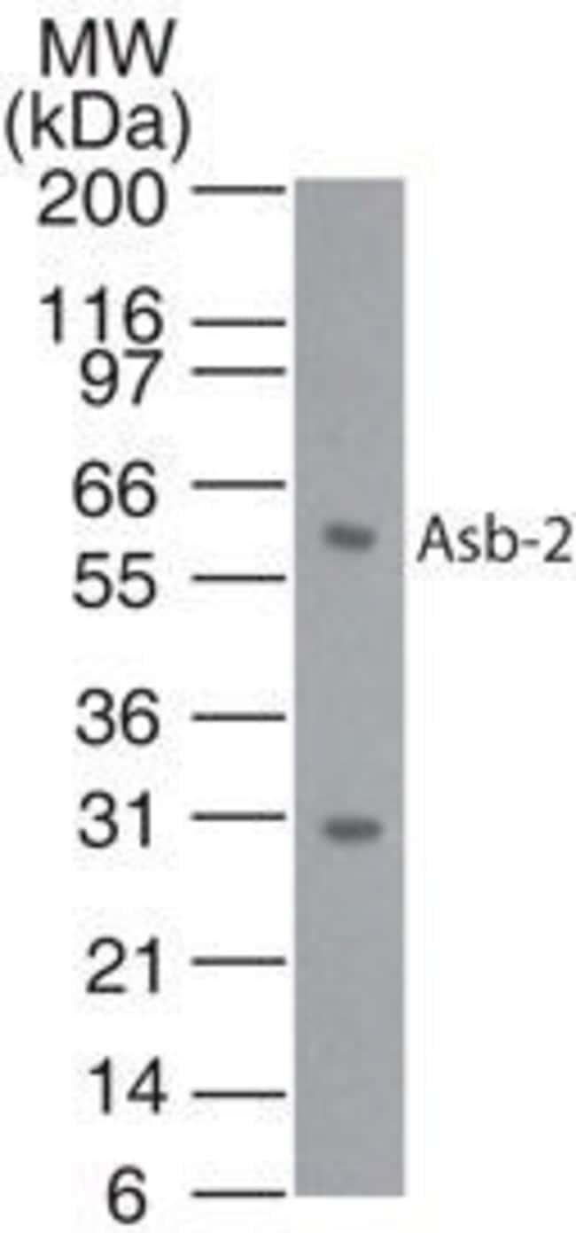ASB2 Rabbit anti-Human, Polyclonal, Invitrogen 200 µL; Unconjugated