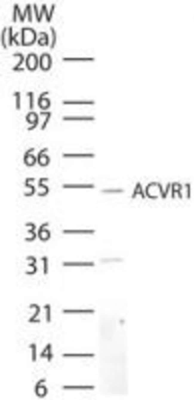 ACVR1 Rabbit anti-Human, Mouse, Rat, Polyclonal, Invitrogen 100 µg;