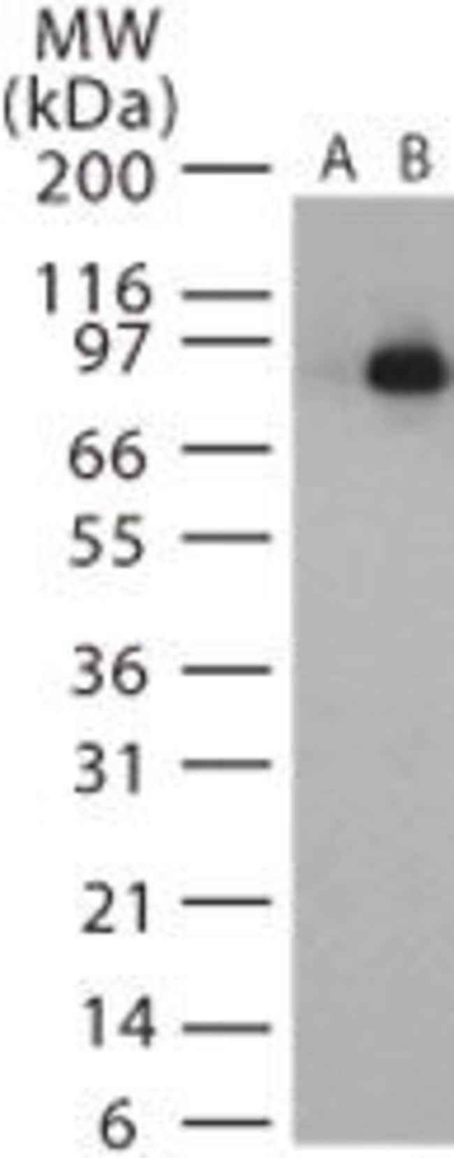 Anthrax Lethal Factor Rabbit anti-Bacteria, Polyclonal, Invitrogen 200