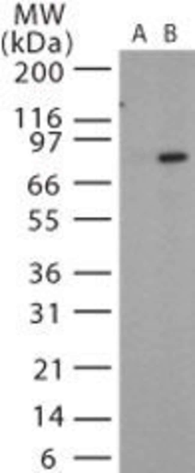 Anthrax Protective Antigen Rabbit anti-Bacteria, Polyclonal, Invitrogen