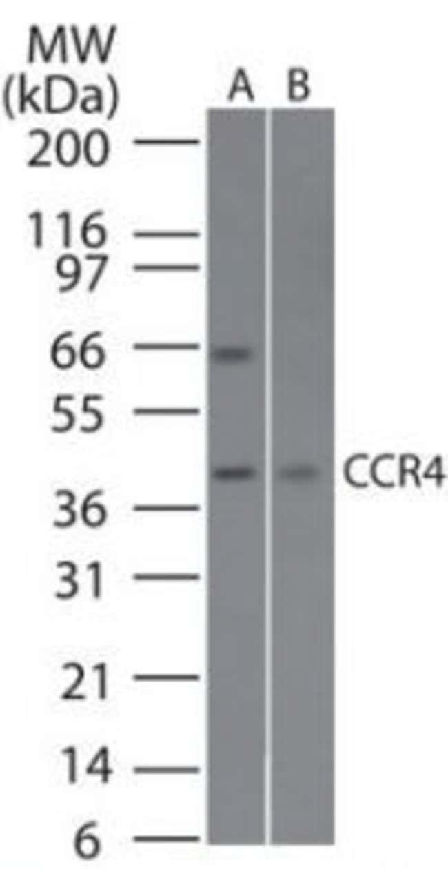CCR4 Rabbit anti-Human, Mouse, Rat, Polyclonal, Invitrogen 100 μg; Unconjugated:Antibodies