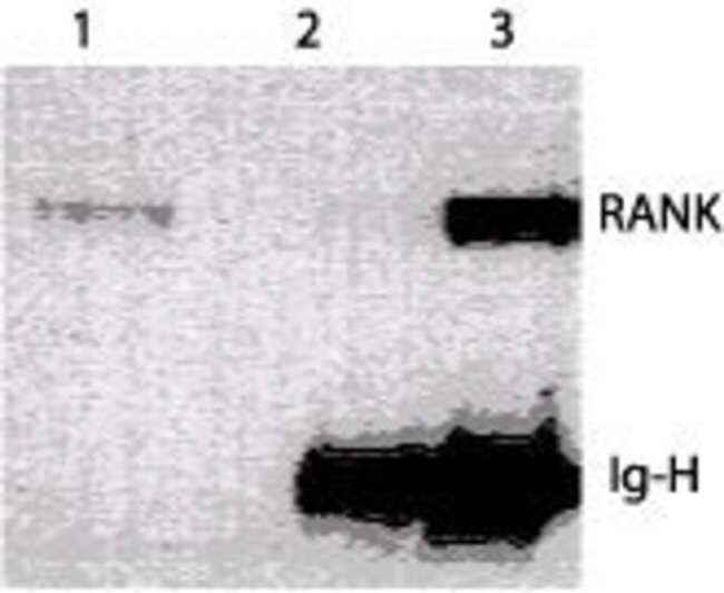 RANK Mouse anti-Human, Mouse, Clone: 64C1385.1, Invitrogen 100 µg;
