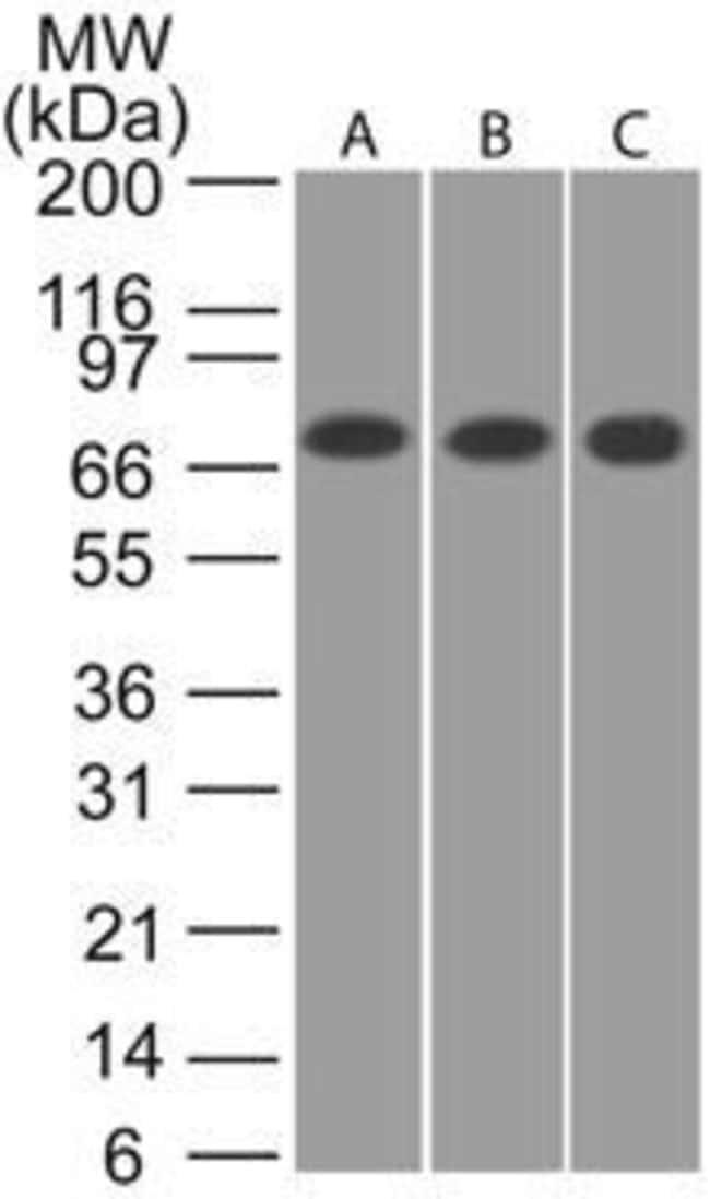 CaMKII beta Rabbit anti-Human, Mouse, Rat, Polyclonal, Invitrogen 100 μL;