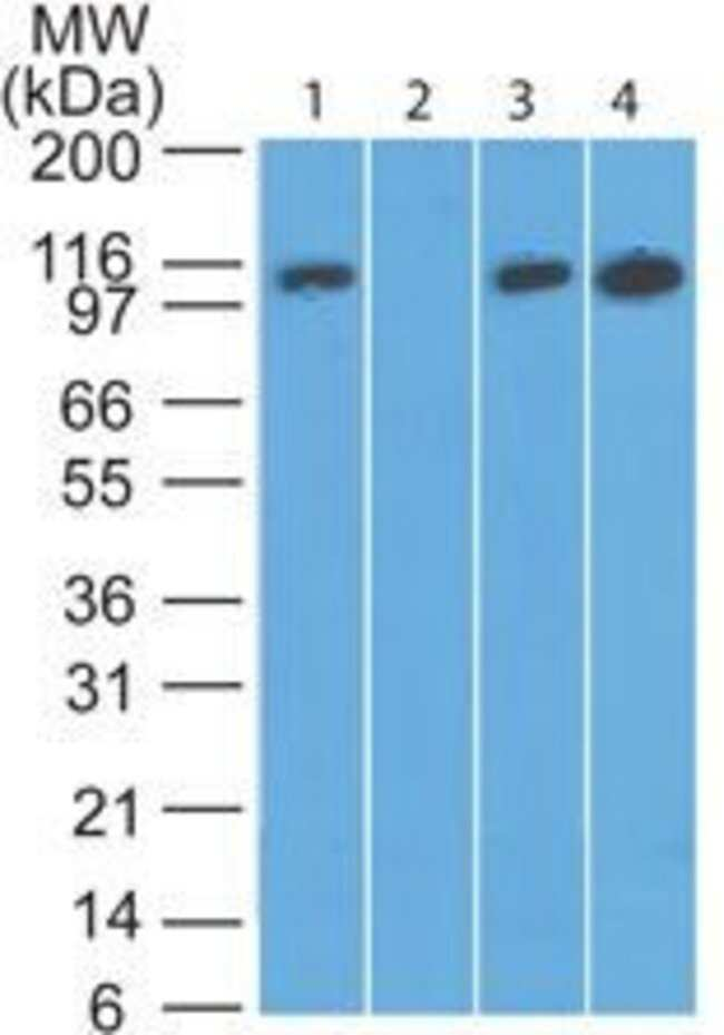 DAAM2 Rabbit anti-Human, Mouse, Rat, Polyclonal, Invitrogen 100 µg;