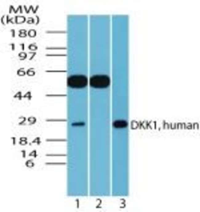 DKK1 Rabbit anti-Human, Mouse, Polyclonal, Invitrogen 100 µg; Unconjugated