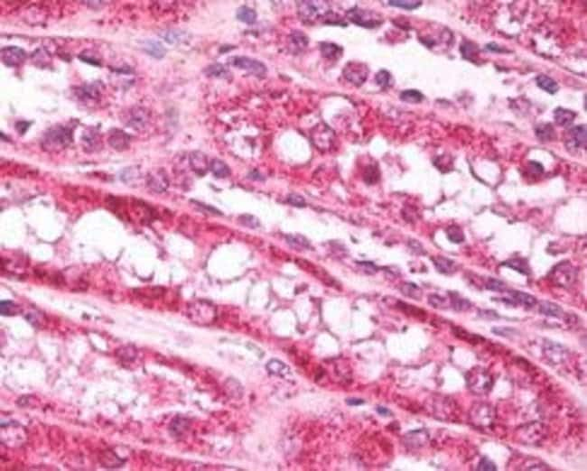 FAM59A Rabbit anti-Equine, Human, Polyclonal, Invitrogen 100 µg; Unconjugated