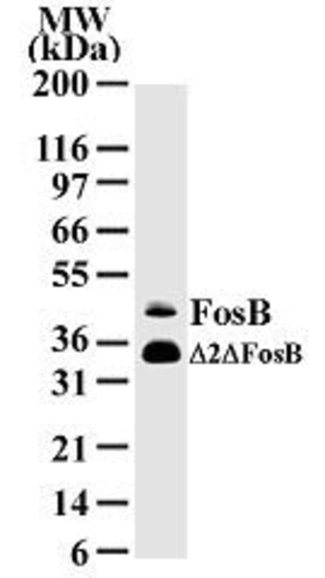FosB Mouse anti-Human, Clone: 83B1138, Invitrogen 100 µg; Unconjugated