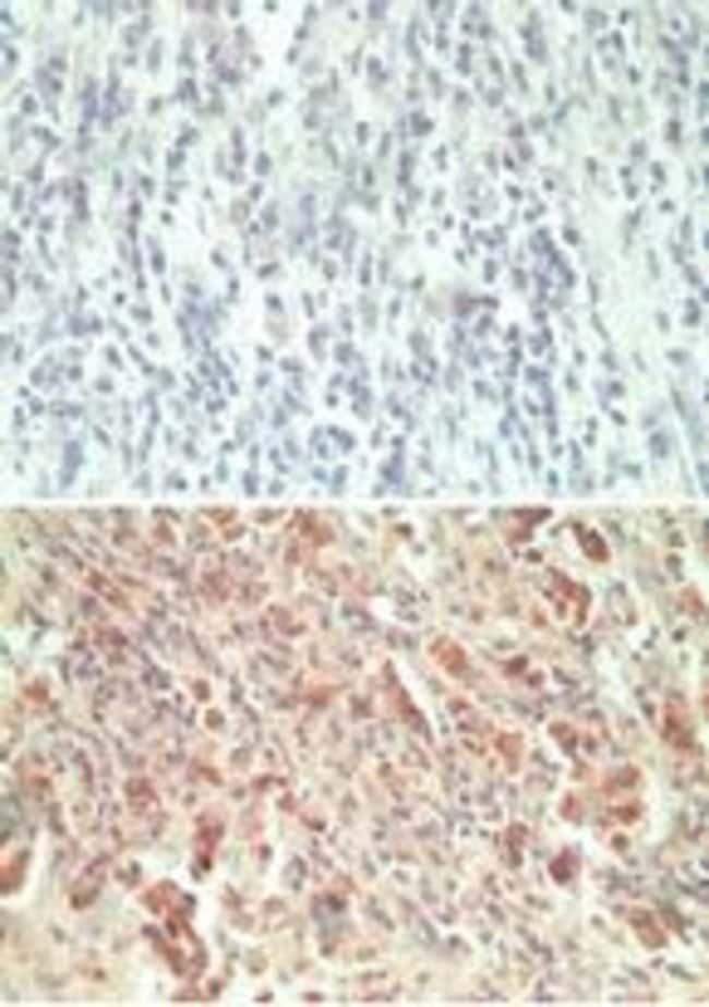GPR18 Rabbit anti-Human, Mouse, Rat, Polyclonal, Invitrogen 100 µg;