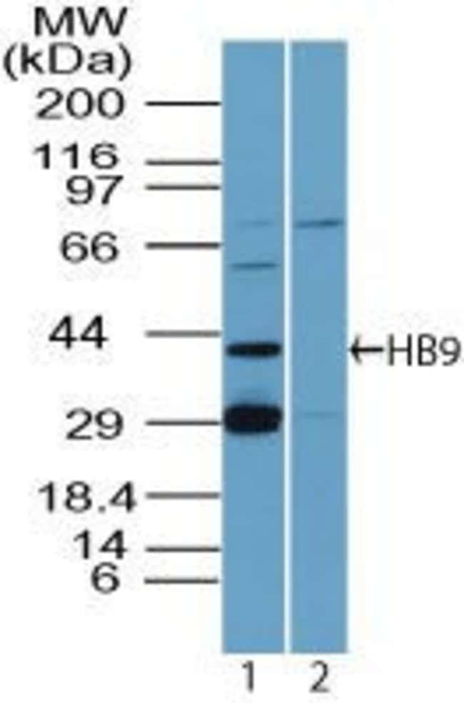 HB9 Rabbit anti-Human, Mouse, Polyclonal, Invitrogen 100 µg; Unconjugated