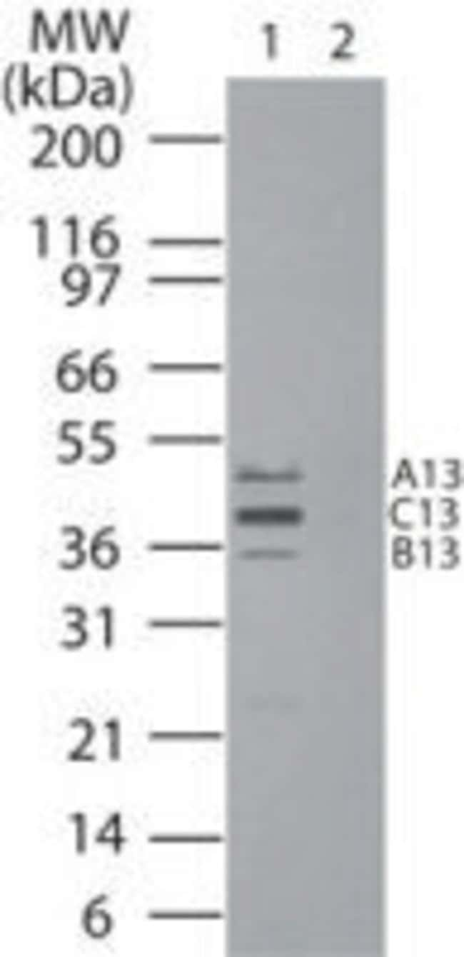 HOXB13 Rabbit anti-Human, Mouse, Rat, Polyclonal, Invitrogen 100 µL;