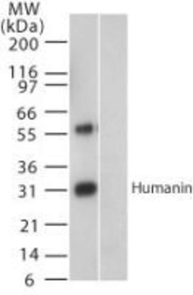 in Rabbit anti-Human, Polyclonal, Invitrogen 100 μL; Unconjugated:Antibodies