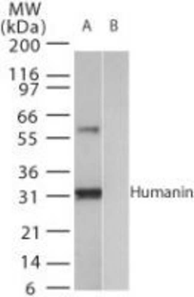 in Rabbit anti-Human, Polyclonal, Invitrogen 100 μL; Unconjugated:Antibodies