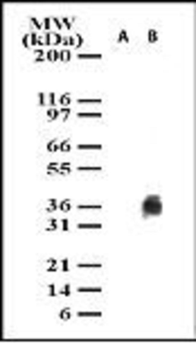 IkB alpha (Cleaved) Mouse anti-Human, Clone: 5D1623, Invitrogen 100 µg;