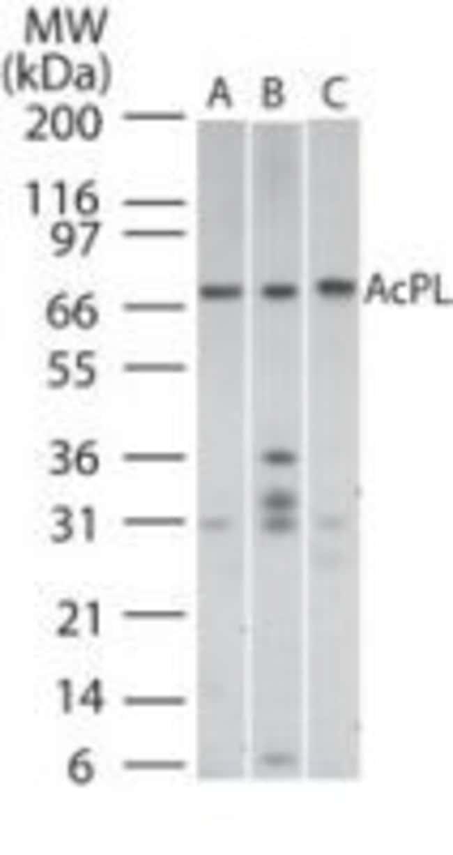 IL18RAP Rabbit anti-Human, Mouse, Polyclonal, Invitrogen 100 μg; Unconjugated:Antibodies