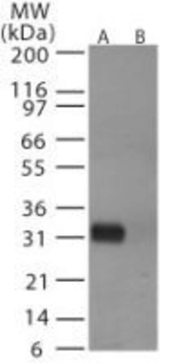Influenza A H6N1 HA Rabbit anti-Virus, Polyclonal, Invitrogen 100 µg;