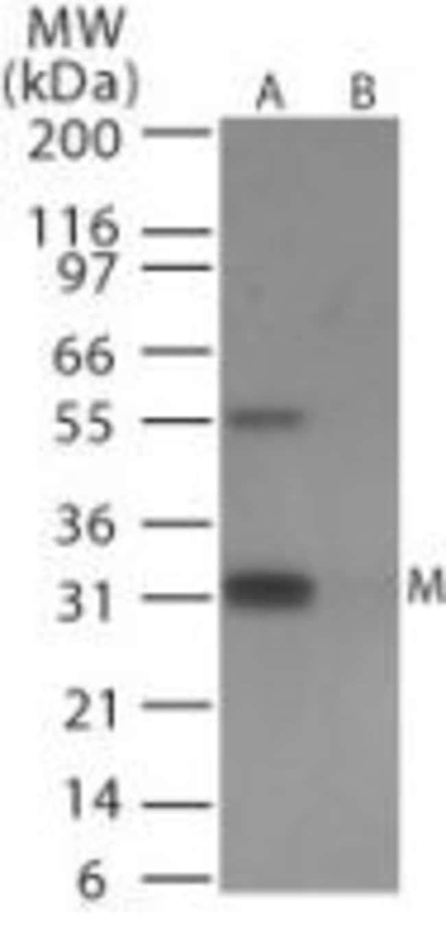 Influenza A H6N1 MP1 Rabbit anti-Virus, Polyclonal, Invitrogen 100 μg;