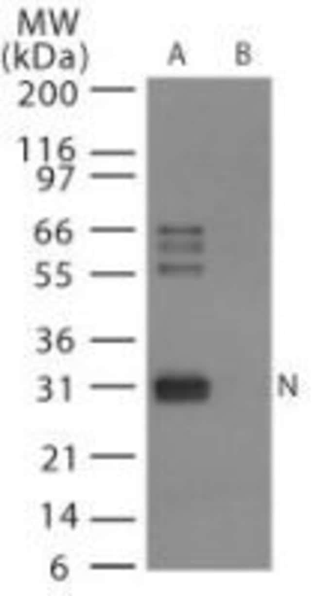 Influenza A H6N1 NP Rabbit anti-Virus, Polyclonal, Invitrogen 100 µg;