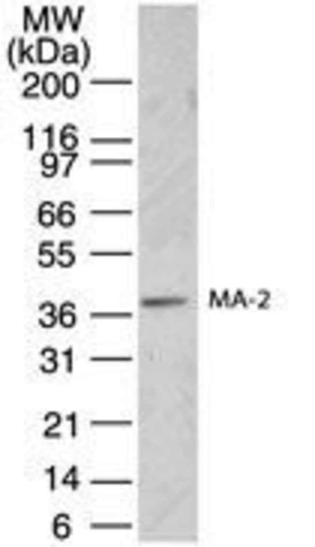 MA2 Rabbit anti-Human, Polyclonal, Invitrogen 200 μL; Unconjugated:Antibodies