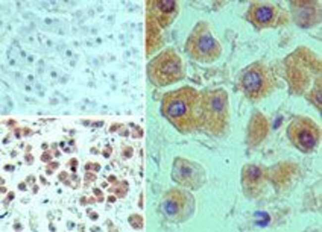 MEKK2 Rabbit anti-Human, Polyclonal, Invitrogen 100 µg; Unconjugated