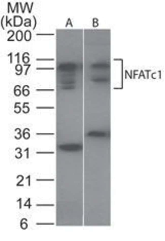 NFATC1 Rabbit anti-Human, Mouse, Polyclonal, Invitrogen 100 µg; Unconjugated