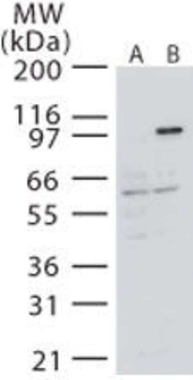 NIK Rabbit anti-Human, Polyclonal, Invitrogen 100 μg; Unconjugated:Antibodies
