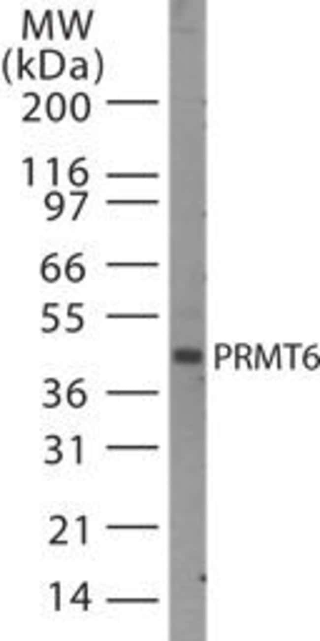 PRMT6 Rabbit anti-Human, Mouse, Polyclonal, Invitrogen 200 µL; Unconjugated