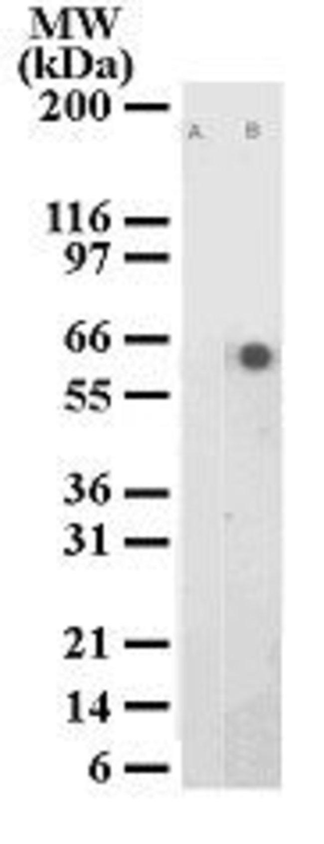 Phospho-ATF2 (Thr71) Mouse anti-Human, Clone: 103C411.2, Invitrogen 100
