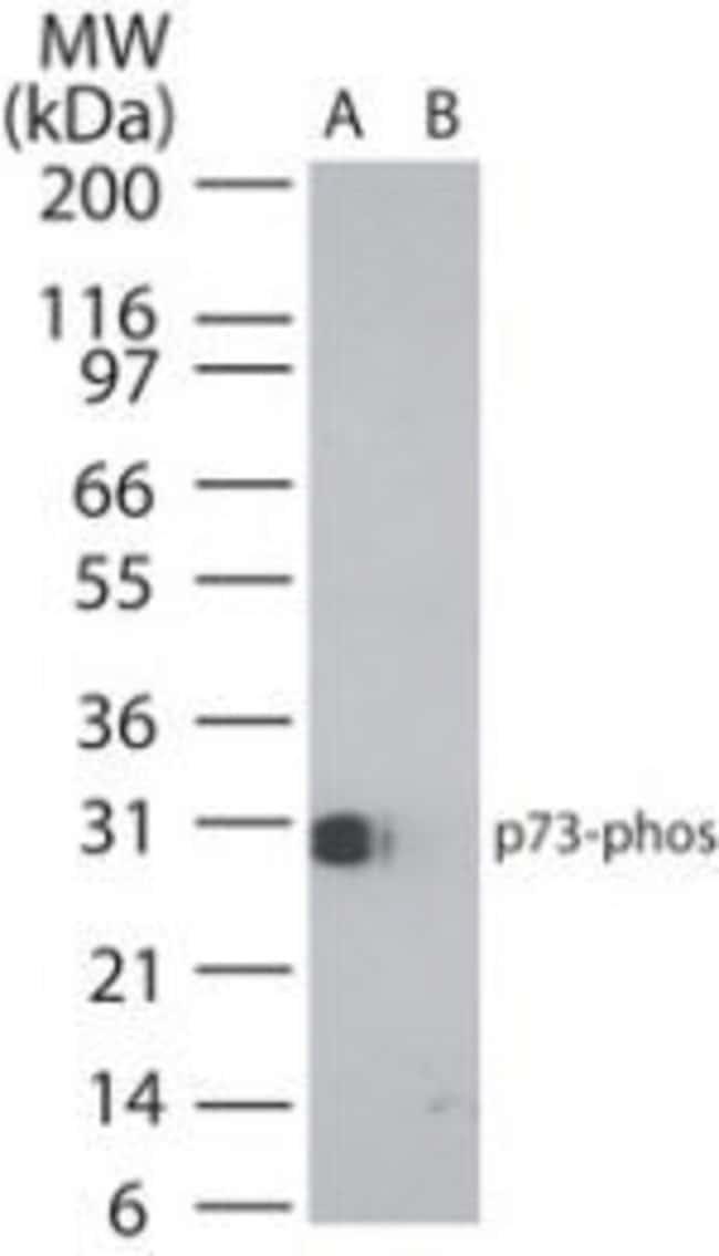 Phospho-p73 (Tyr99) Rabbit anti-Human, Polyclonal, Invitrogen 20 μg;