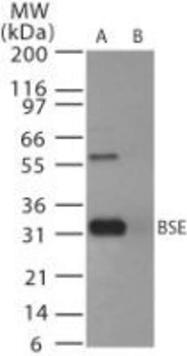 PrP Rabbit anti-Avian, Bovine, Ovine, Polyclonal, Invitrogen 100 μg;