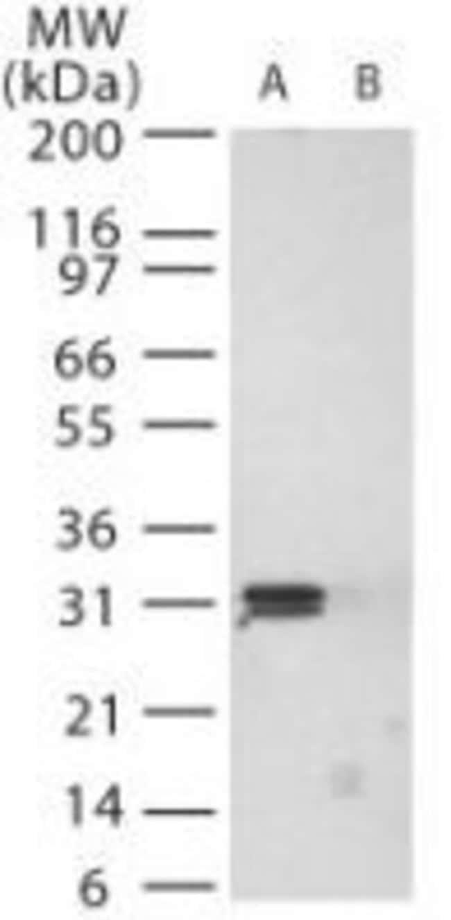 PrP Rabbit anti-Bovine, Ovine, Polyclonal, Invitrogen 100 µg; Unconjugated