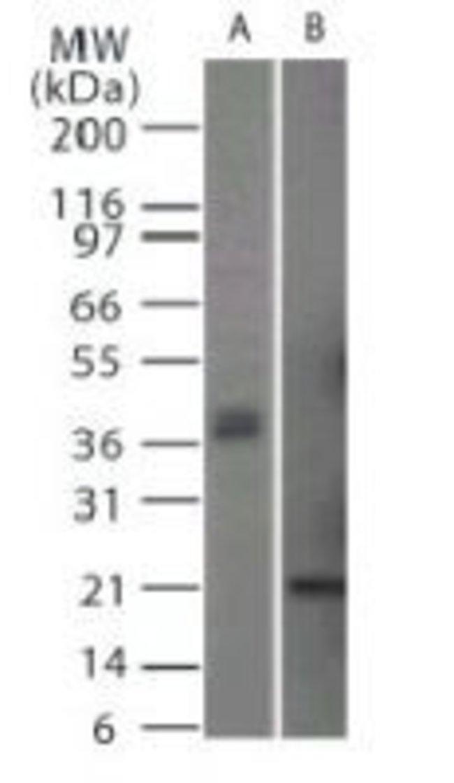 CD254 (RANK Ligand) Rabbit anti-Human, Mouse, Polyclonal, Invitrogen 100