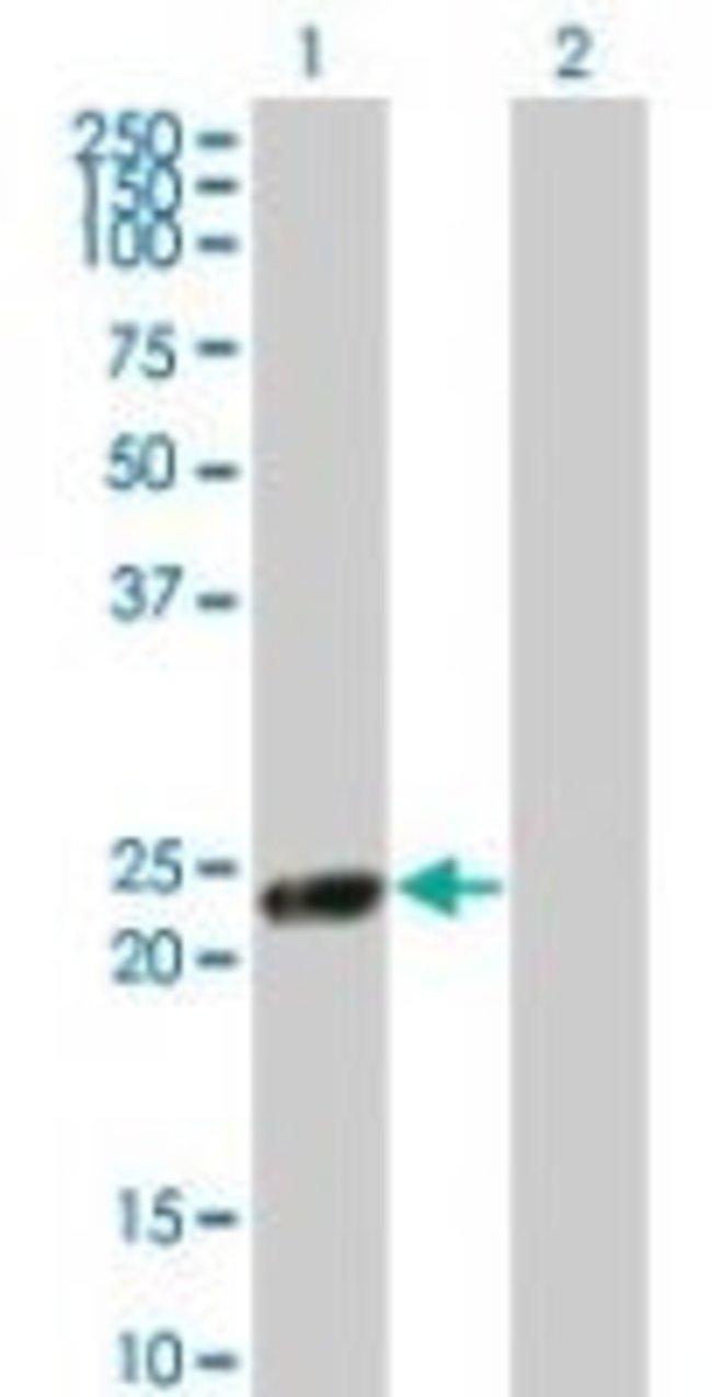 RGS5 Rabbit anti-Human, Polyclonal, Invitrogen 100 µL; Unconjugated