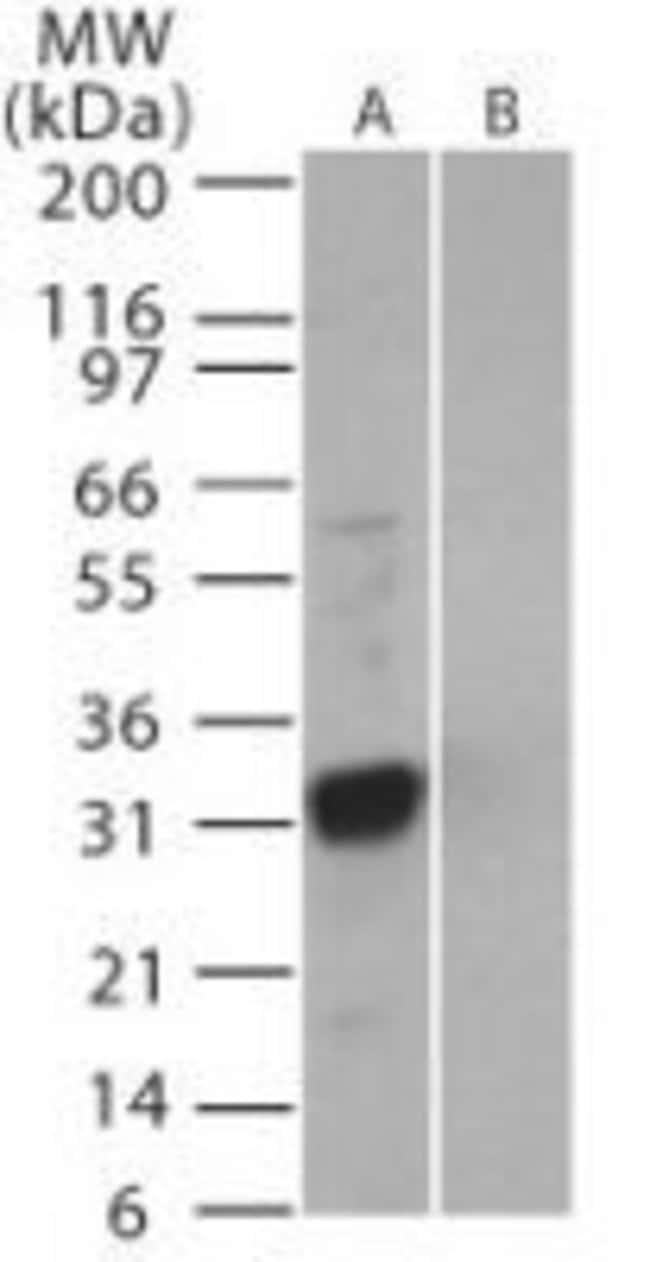 SARS Coronavirus 3b Rabbit anti-Virus, Polyclonal, Invitrogen 200 µL;