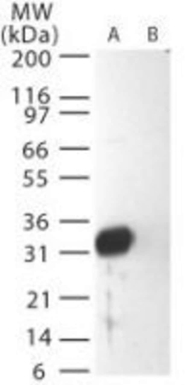 SARS Coronavirus Matrix Rabbit anti-Virus, Polyclonal, Invitrogen 100 μg;