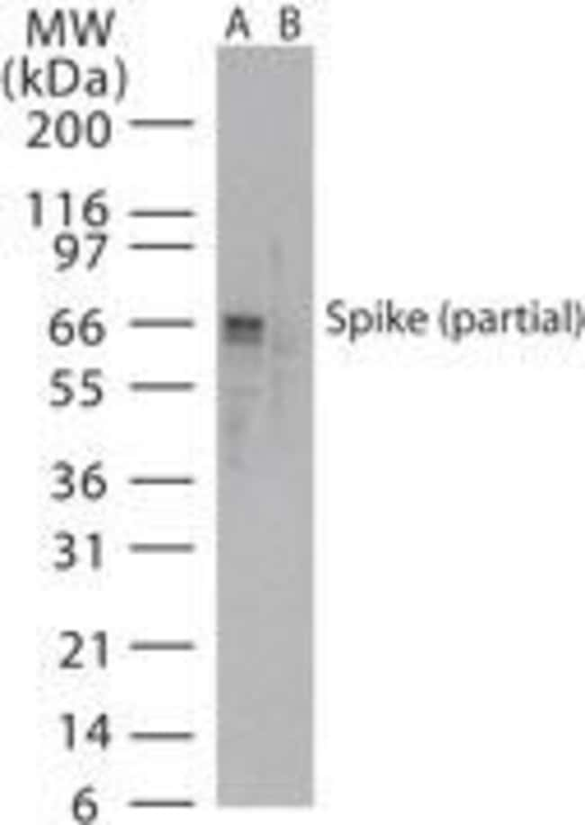 SARS Coronavirus Spike Protein Rabbit anti-Virus, Polyclonal, Invitrogen