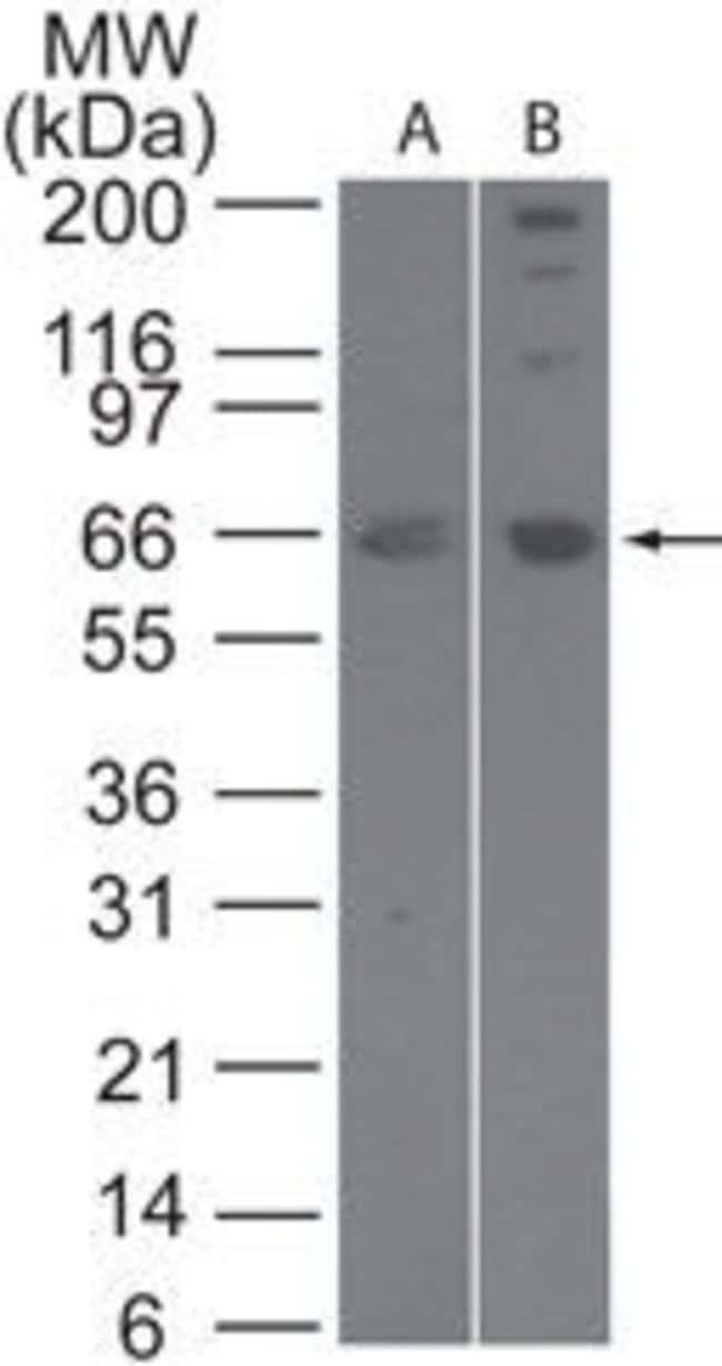 SENP2 Rabbit anti-Human, Mouse, Polyclonal, Invitrogen 100 μg; Unconjugated:Antibodies