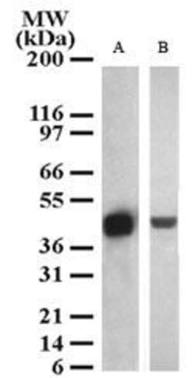 SETD7 Rabbit anti-Human, Mouse, Polyclonal, Invitrogen 200 μL; Unconjugated:Antibodies