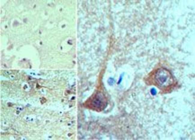 Prosapip2 Rabbit anti-Human, Mouse, Rat, Polyclonal, Invitrogen 100 µg;