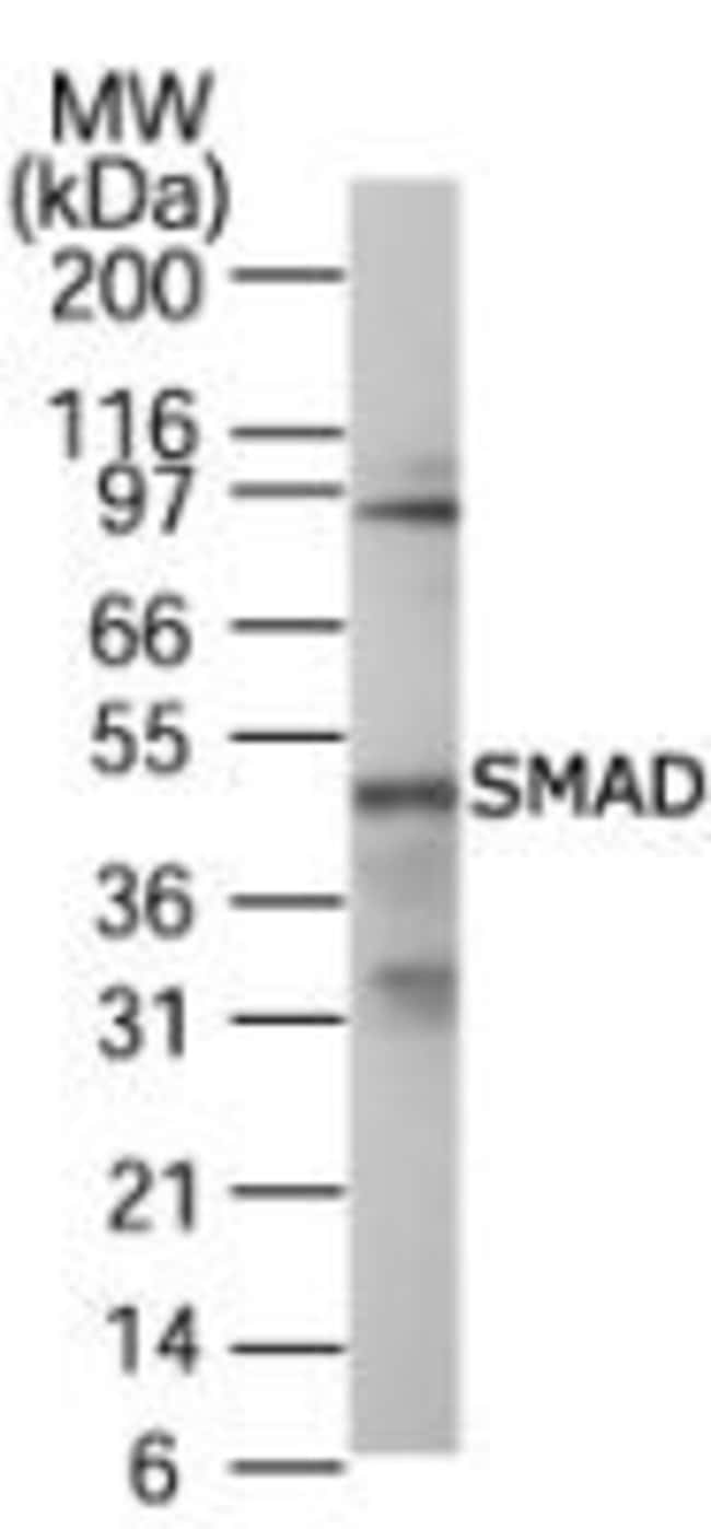 SMAD1/SMAD5/SMAD9 Rabbit anti-Human, Mouse, Rat, Polyclonal, Invitrogen
