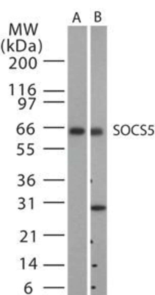 SOCS5 Rabbit anti-Human, Mouse, Polyclonal, Invitrogen 200 μL; Unconjugated:Antibodies
