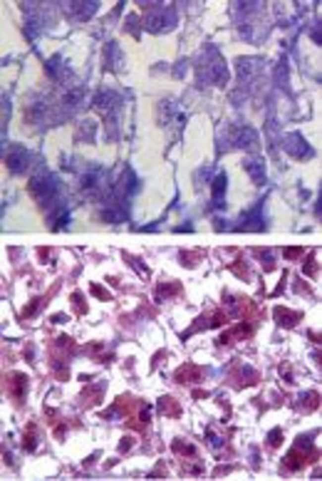 SOD1 Rabbit anti-Bovine, Human, Mouse, Rat, Polyclonal, Invitrogen 100