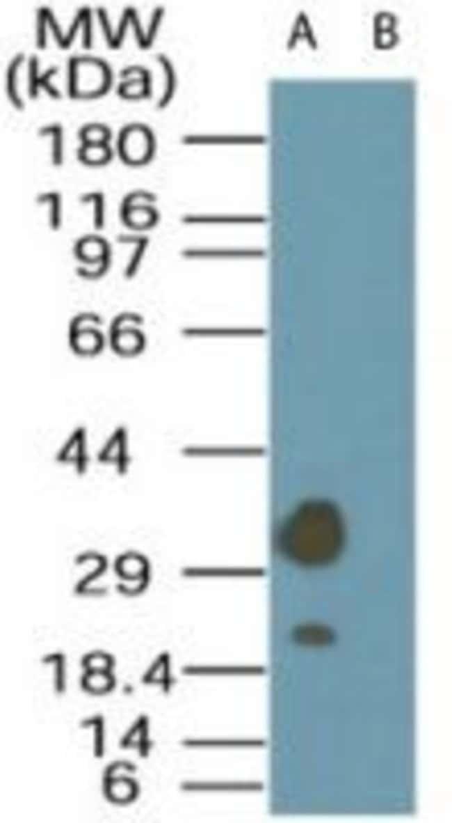 LYK5 Rabbit anti-Human, Polyclonal, Invitrogen 100 μg; Unconjugated:Antibodies