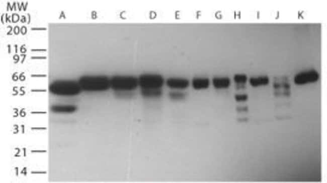 RNF216 Rabbit anti-Human, Polyclonal, Invitrogen 100 μg; Unconjugated:Antibodies