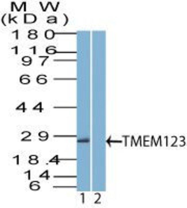 TMEM123 Rabbit anti-Rat, Polyclonal, Invitrogen 100 µg; Unconjugated