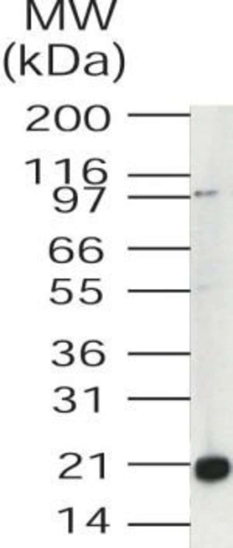 UBE2V1 Rabbit anti-Human, Polyclonal, Invitrogen 100 μg; Unconjugated:Antibodies