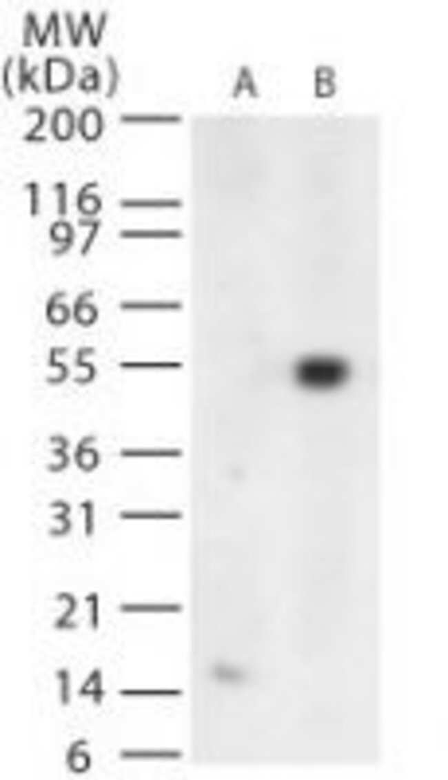 West Nile Virus Envelope Rabbit anti-Virus, Polyclonal, Invitrogen 100