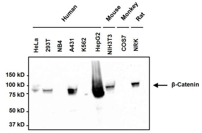 beta Catenin Mouse anti-Human, Mouse, Non-human primate, Rat, Clone: 6F9,